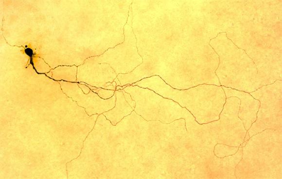 Уточнены функции недавно открытого вида клеток сетчатки