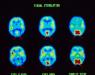 Недостаток информации заставляет человеческий мозг «видеть» прошлое