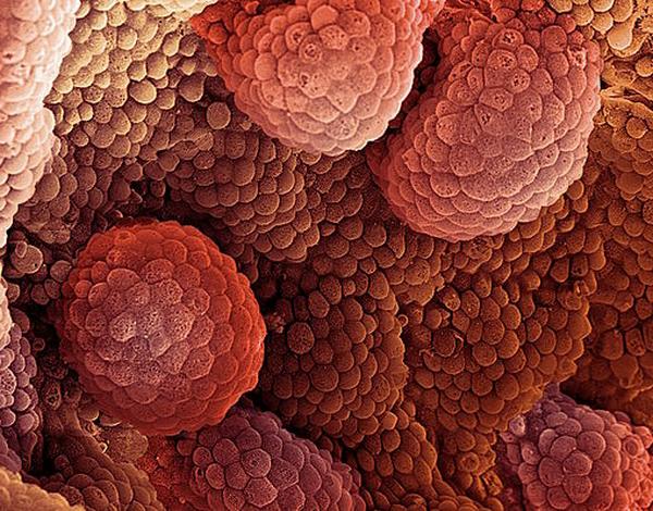 Поведение раковых клеток и межвидовая конкуренция Наука 21 век