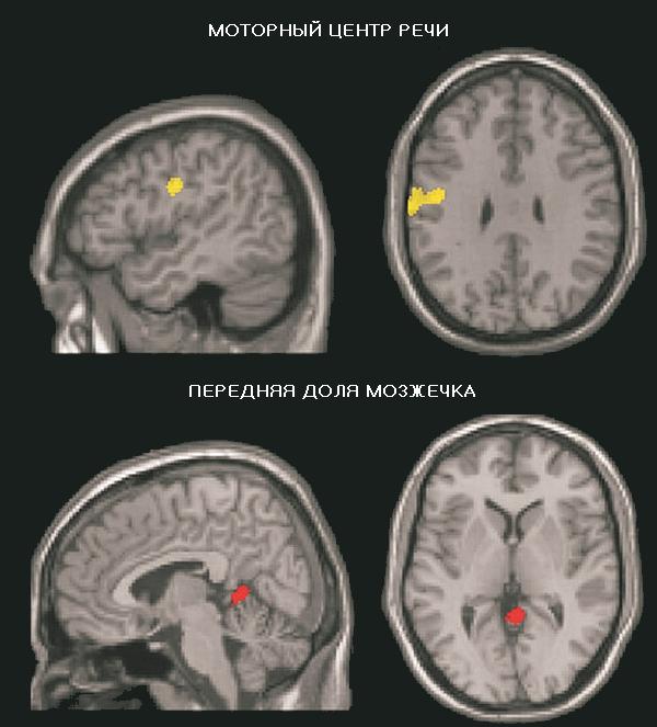 В подростковом возрасте IQ может претерпевать значительные изменения