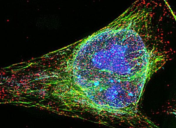 Сканирующая электронная микроскопия и РСМА
