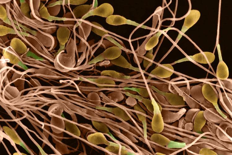 Медленные сперматазоиды
