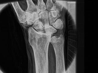Новая технология рентгеновских лучей точно отображает мягкие ткани
