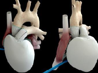 Carmat: саморегулирующееся искусственное сердце